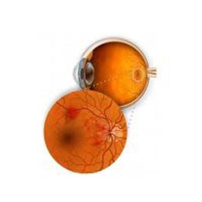 Diabetic Retinal