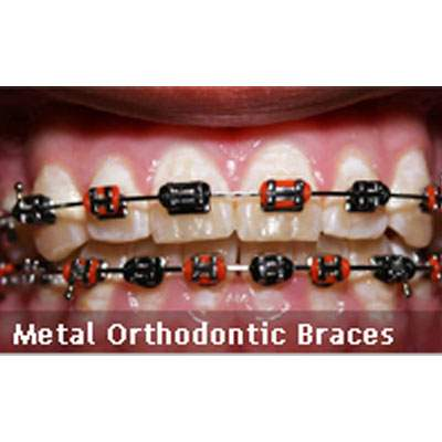 Metal Orthodontic Braces