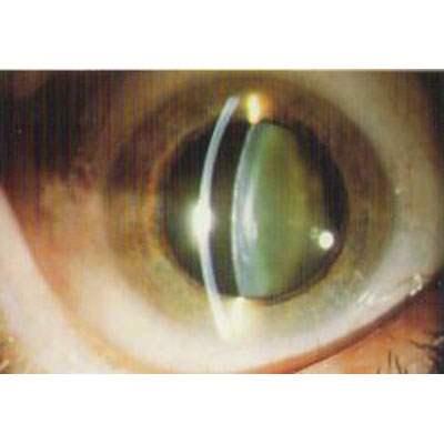 Sohan Singh Eye Hospital Pvt Ltd