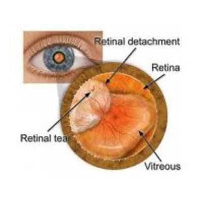 Retinal Reattachment