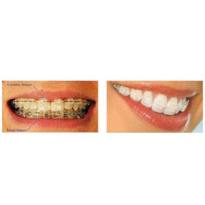 Braces or Orthodontic Treatment