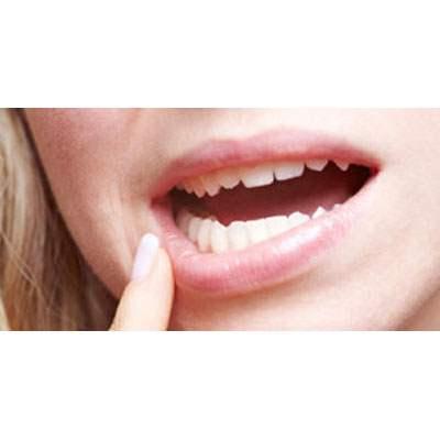 Gum diseases